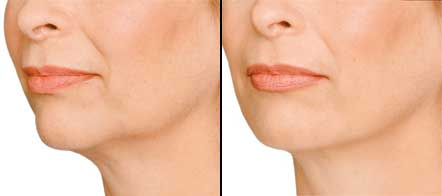 dermal fillers, Weybridge, jaw line