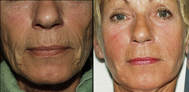 dermal filler,Esher, nose to mouth lines