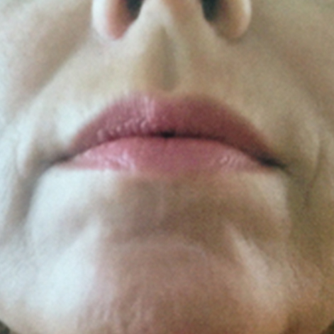 mouth rejuvenation treatment