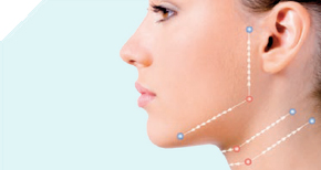 Silhouette Soft jaw lift