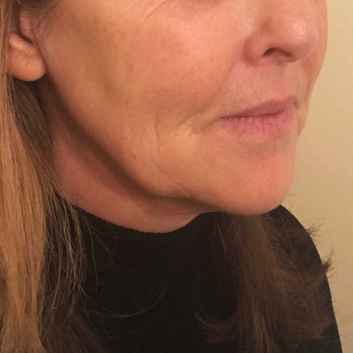 REJUVENATION OF THE LOWER FACE AND JAWLINE BEFORE