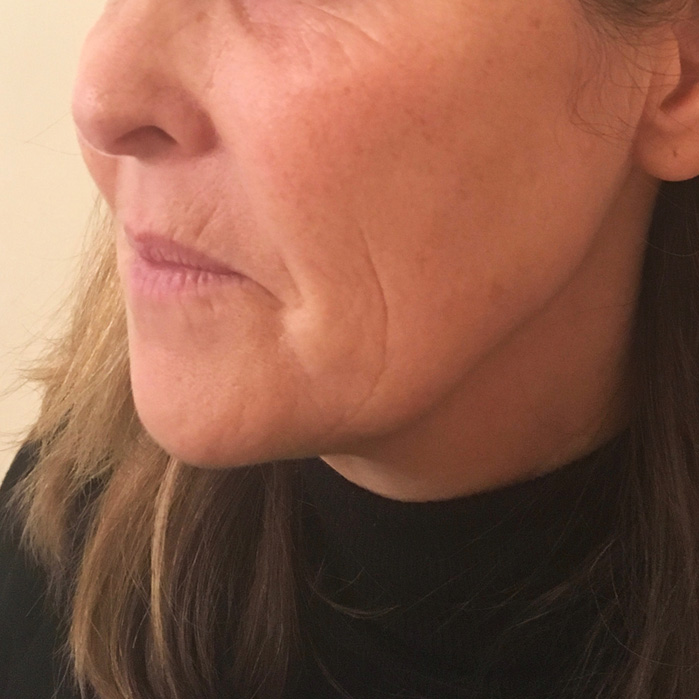 liquid facelift before