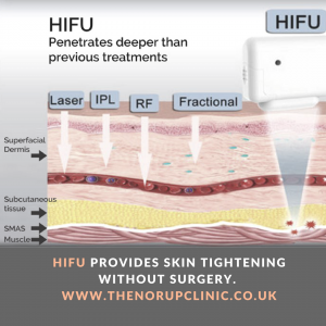 HIFU Surrey, High Intensity Focused Ultrasound (Ultherapy)