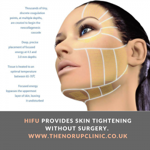 HIFU, High Intensity Focused Ultrasound, Ultherapy, safely lift and