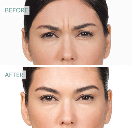 Botox Surrey, before and after