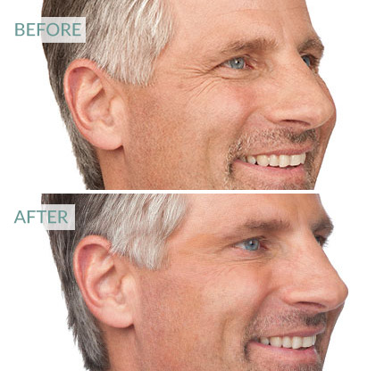 botox for men, surrey