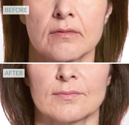botox for sad face - naso labial lines esher, weybridge