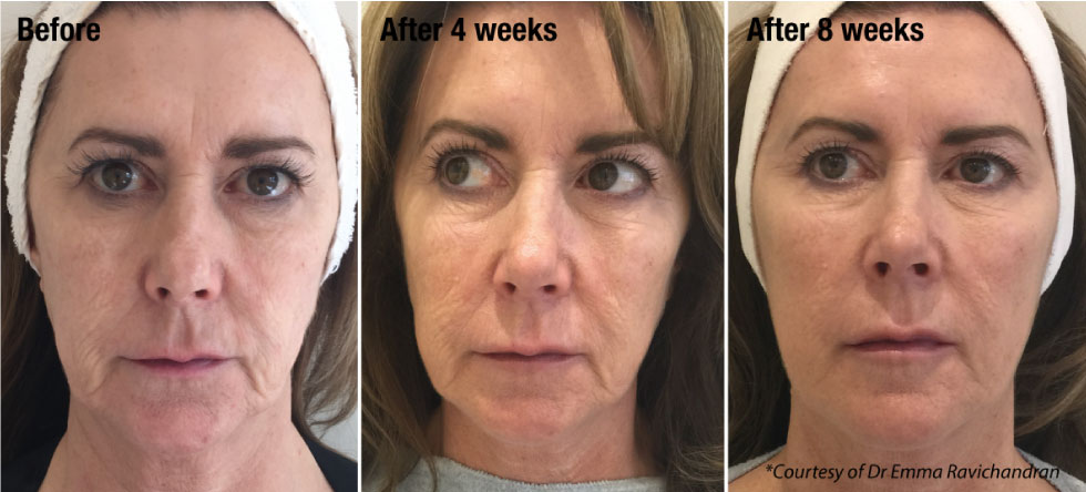 Prohilo anti-ageing treatment