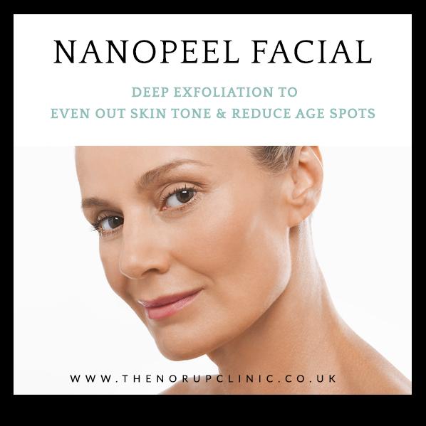 Nano peel excellence facial