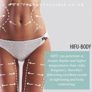 Hifu Body treatment