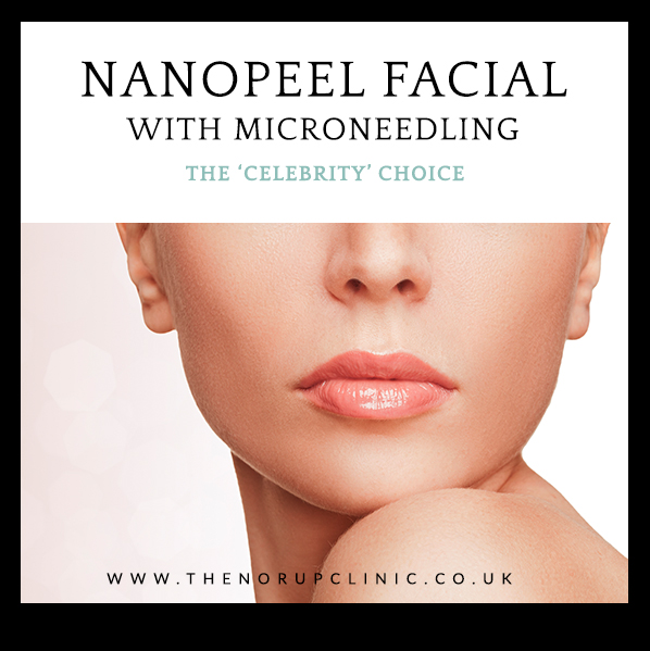 Nanopeel microneedling celebrity facial