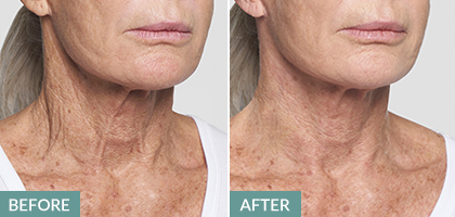 neck lift, thread lift