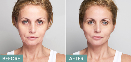 Silhouette Soft non-surgical facelift