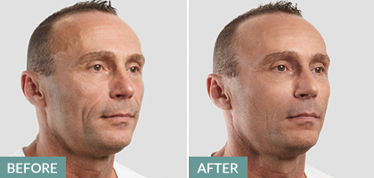 non-surgical facelift before and after - for men
