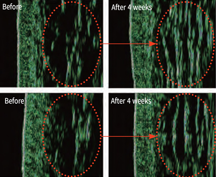 Plasma facial skin regeneration