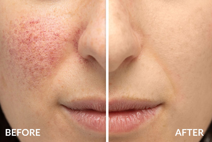 Rosacea before and after treatment - Surrey