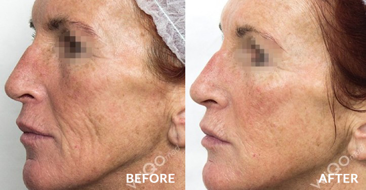 ageing skin rejuvenation