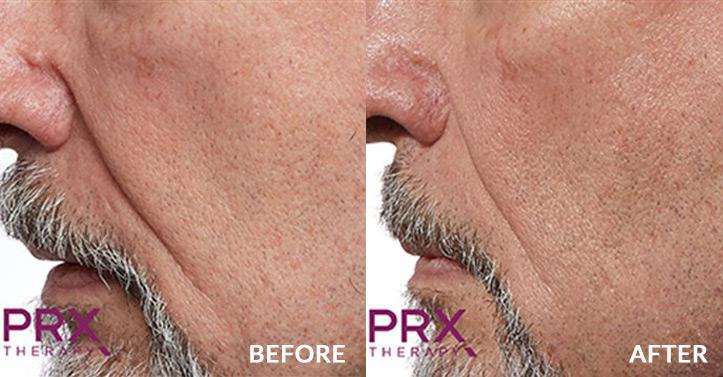 Ageing skin treatment for men