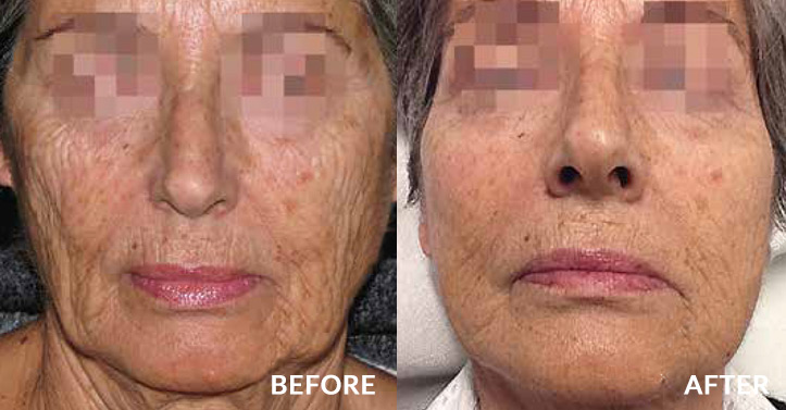wrinkles reduced - before and after