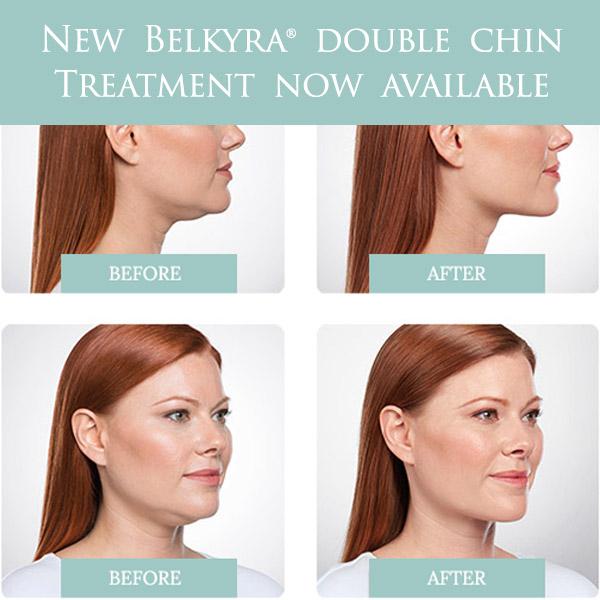 Belkyra, Kybella double chin treatment, Surrey