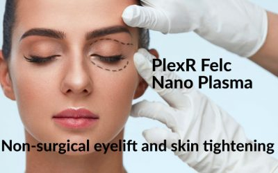 PlexR Felc Nano Plasma Eyelift