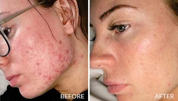 Acne treatment - nano plasma