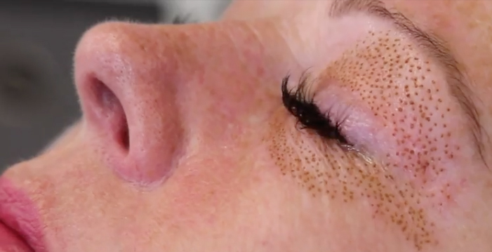Eyelift non-surgical