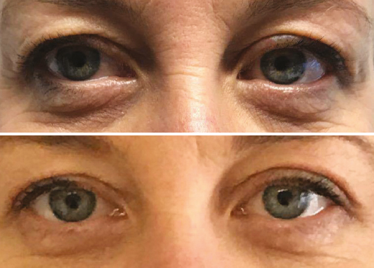 non surgical blepheroplasty drooping eyelids