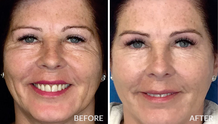 Lines & Wrinkles before and after