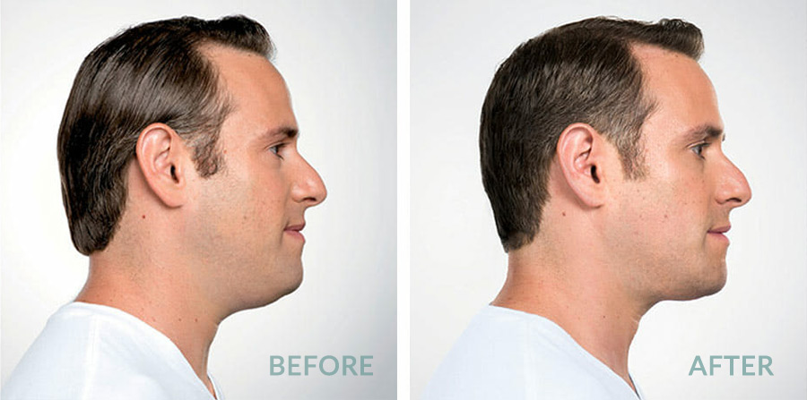 Belkyra fat removal for men
