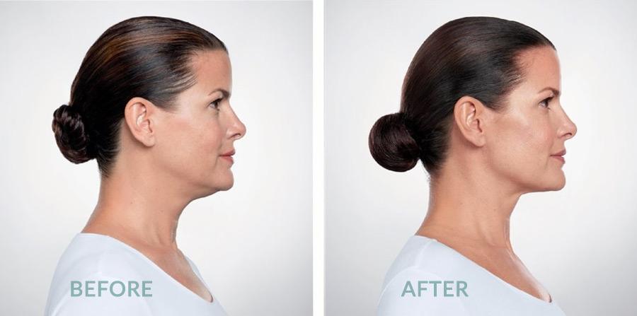 Belkyra fat removal for women